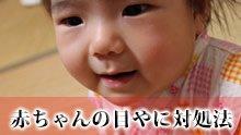 【赤ちゃんの目やにの原因】これって病気?対処法4つ