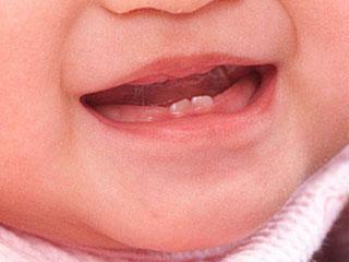 赤ちゃんの乳歯