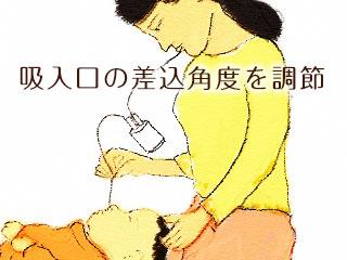 吸引器で赤ちゃんの鼻水を吸う母親
