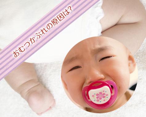 おむつかぶれの原因はカビ?!赤ちゃんのおしりがただれる原因6つ
