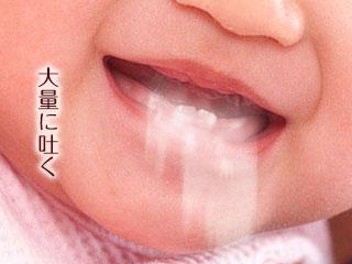 ミルクを嘔吐する赤ちゃん