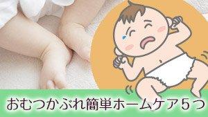 赤ちゃんのおむつかぶれ対策!ママができる簡単ホームケア5つ