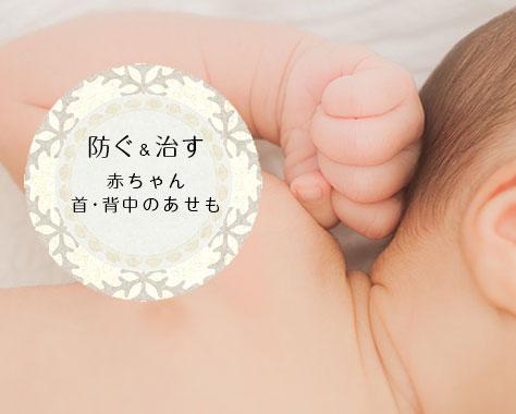 【赤ちゃんの首/背中のあせも対策】薬に頼らず基本ケアを見直そう