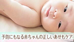 赤ちゃんのあせもケア5つ!できやすい首/背中/頭は要注意