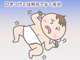 ひきつけ起こす赤ちゃん
