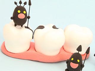 虫歯菌に侵される歯