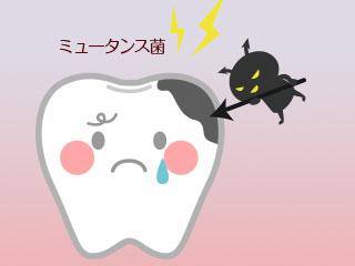歯を攻撃するミュータンス菌