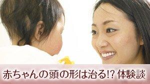 赤ちゃんの頭の形は治る?絶壁/いびつはいつまで?体験談16