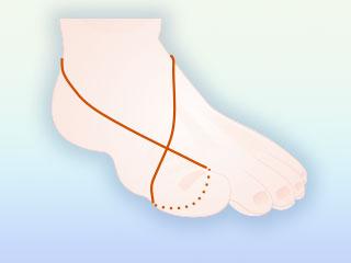 足首に輪ゴムをかける
