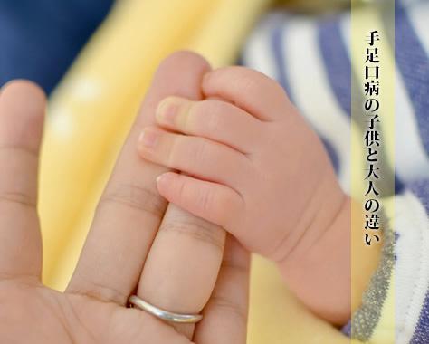 手足口病の初期症状から子供と大人の症状の違い