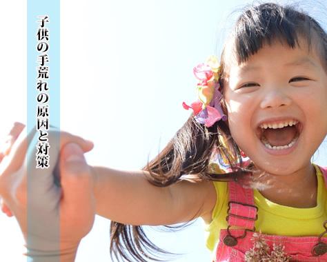 子供の手荒れの原因/対策方法/おすすめハンドクリーム