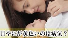 赤ちゃんの目やにが黄色いのは結膜炎?症状/対処法