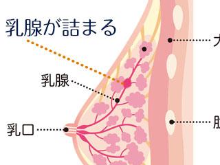 乳房断面図と乳腺のつまり