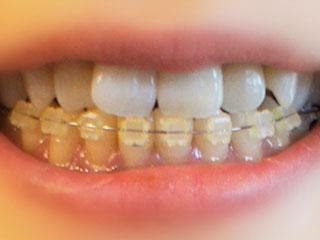 歯列矯正の金具をはめた歯