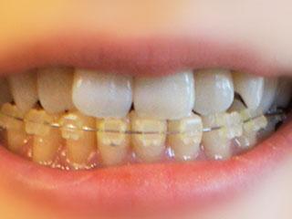 歯にはめられた矯正ワイヤー