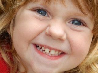 前歯に隙間がある女の子
