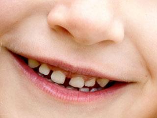 前歯に隙間がある歯並び