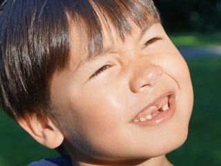 前歯がない子供
