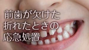 前歯が欠けた/折れたで放置はNG!応急処置&歯の保存