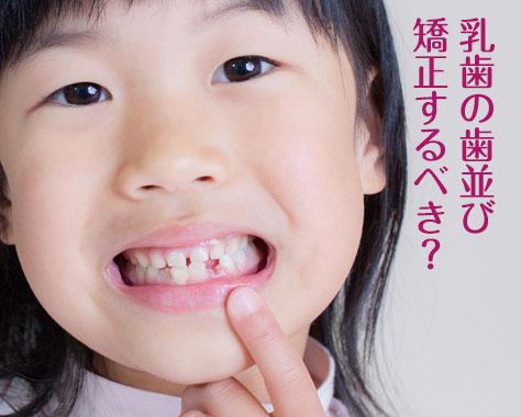 乳歯の歯並びが悪い原因&きれいな歯列にする7つの方法