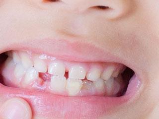すきっぱの歯並び