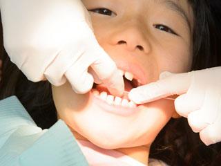 歯科医に歯の治療を受ける子供