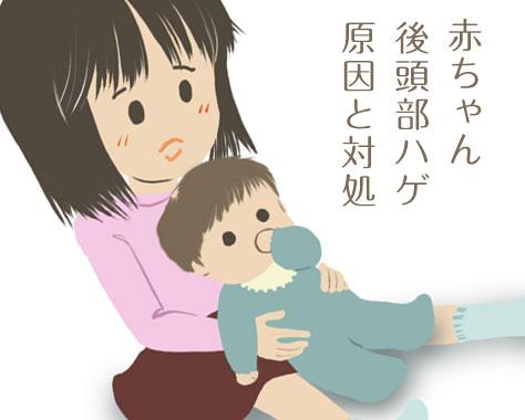 赤ちゃんの後頭部はげ原因はストレス?対策/首振り/保湿