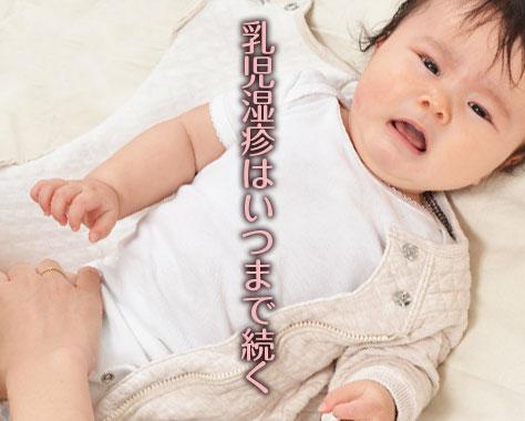 乳児湿疹はいつまで?病院での処置などママの体験談15