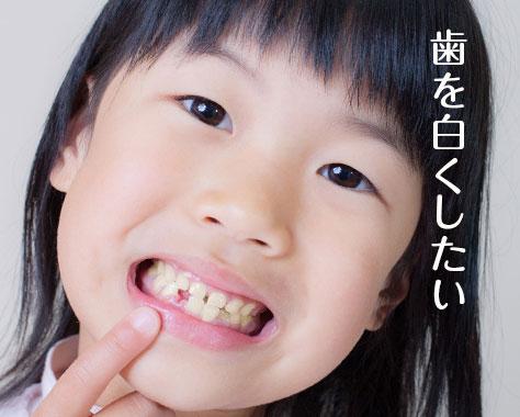 子供の歯が黄色いのはなぜ?原因と自宅/歯医者で治す方法