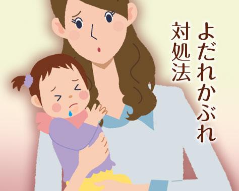 赤ちゃんのよだれかぶれ対策とステロイド等を使った体験談
