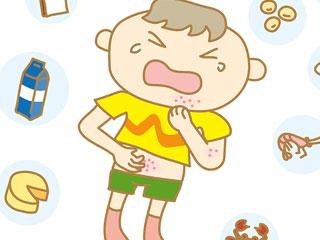 食物アレルギーを起こす子供
