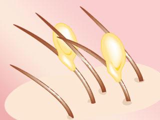 髪の毛に付いたシラミの卵