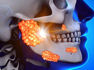 頭部の感染図