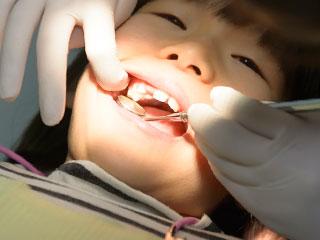 歯科医に歯を調べられる子供