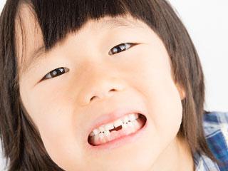 前歯がない女の子