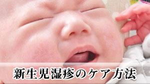 【新生児の湿疹】顔や首に出る種類と特徴とケアの方法