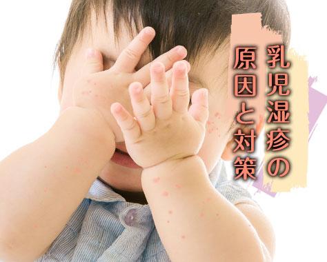 乳児湿疹の原因は?肌トラブルの症状と改善対策について