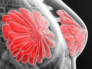 放射状の乳腺