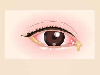 結膜炎の症状