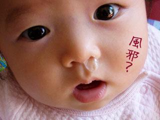 鼻水を垂らす赤ちゃん