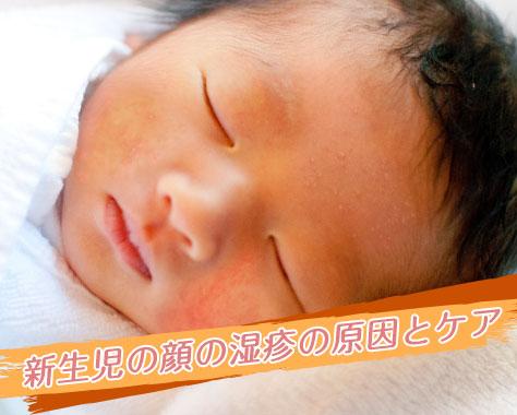 新生児の顔の湿疹の原因・赤いブツブツの洗い方・ケア方法