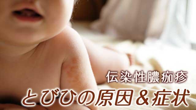 とびひがうつる原因と予防法3!流行る期間・お風呂や保育園は?