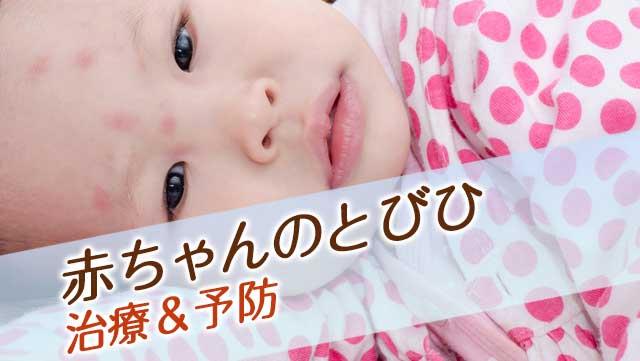 赤ちゃんのとびひの症状とは?うつさないための治療&予防