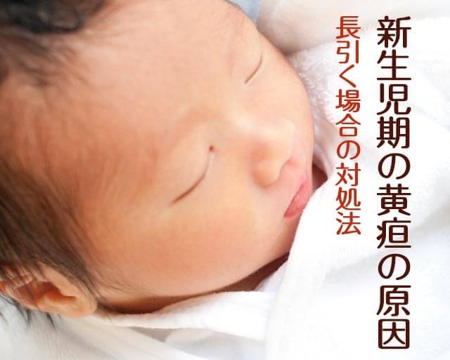 新生児黄疸の症状・長引く原因と光線治療などの費用は?