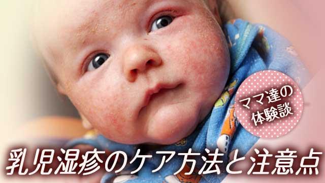 乳児湿疹のケア&ステロイド薬~先輩ママ15人の治療の体験談