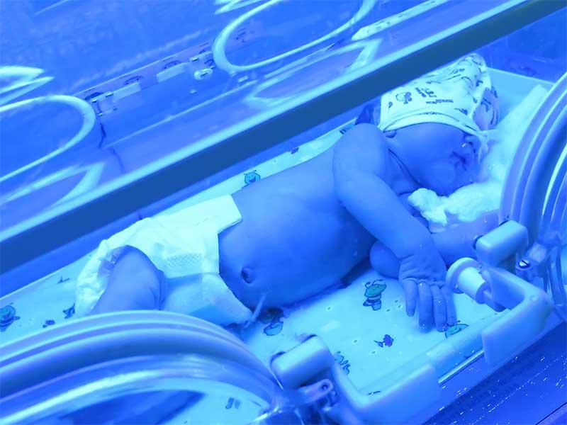 光線治療を受けている新生児