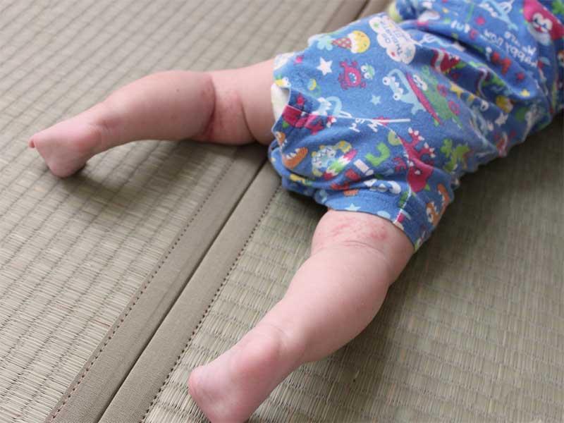 ロンパースを着てハイハイしてる赤ちゃん