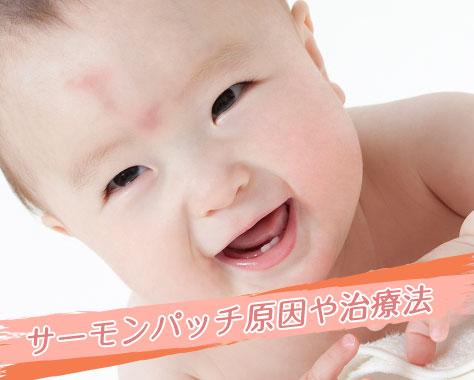 サーモンパッチは消えない?治療法は?新生児に多い原因