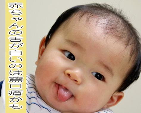 赤ちゃんの舌が白いのは病気のサインかも?疑うのは鵞口瘡