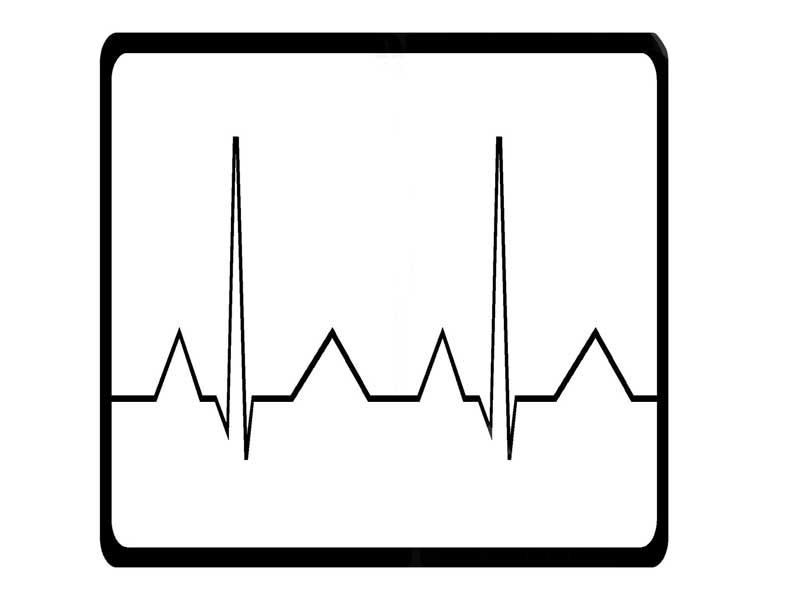 心臓データのグラフのイラスト